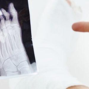 Sprained Toe vs Broken Toe