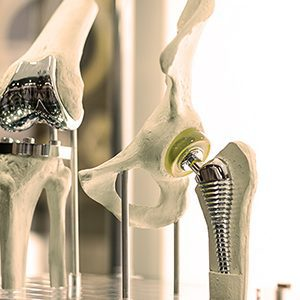 Total Joint Replacement Daytona Beach FL