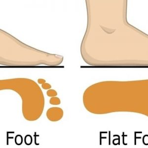 What Are Flat Feet?