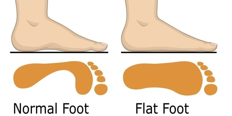 What Are Flat Feet