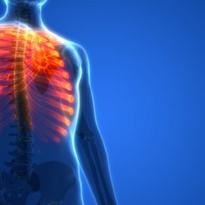 Flail Chest: Causes, Symptoms, Treatment, & More