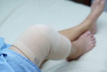 total-knee-replacement-1
