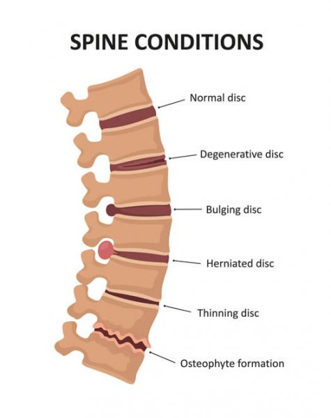 Stages of spinal osteochondrosis